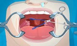 Tonsil Surgery
