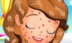 Sofia Squeeze Pimples